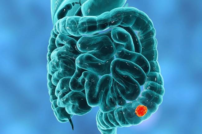 Trong 6 yếu tố làm tăng nguy cơ mắc ung thư đại trực tràng này thì có 2 điều là không thể tránh - Ảnh 4.