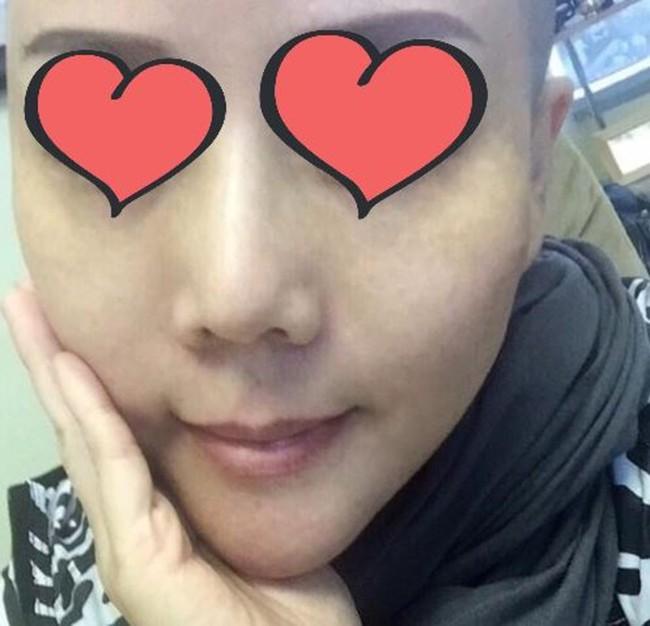 Phẫu thuật căng da mặt khiến cả khuôn mặt người phụ nữ bị bao phủ trong những vết phồng rộp kinh hoàng - Ảnh 1.