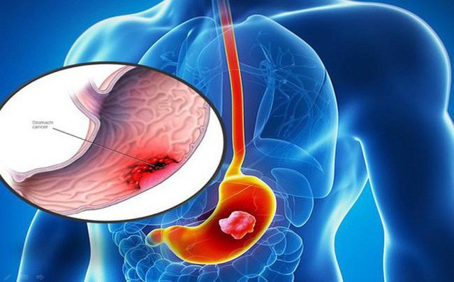 Từ sự ra đi của người mẫu Như Hương: Đừng chủ quan với những dấu hiệu cảnh báo sớm của ung thư dạ dày  - Ảnh 2.