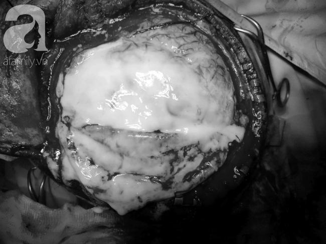 Sốt liên tục 4 ngày, bé trai 13 tuổi phải tháo nắp hộp sọ thành đầu móp vì căn bệnh hiểm ác này - Ảnh 3.