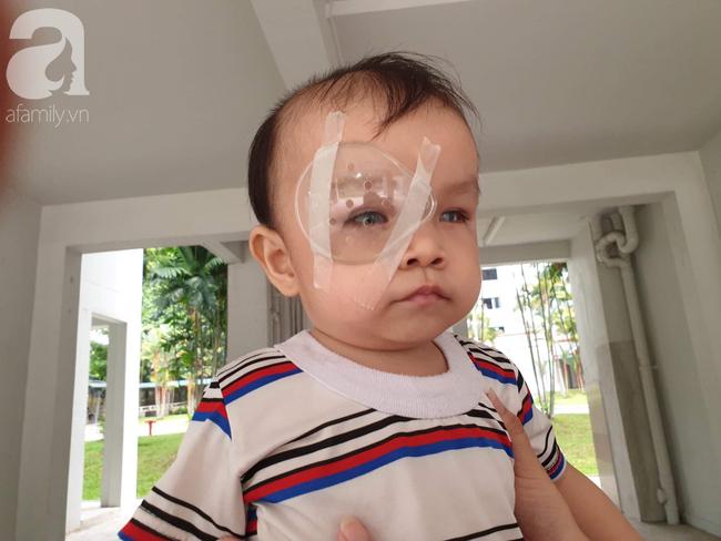 Bé trai 15 tháng tuổi có nguy cơ mù vĩnh viễn, người mẹ trẻ khóc cạn nước mắt đi tìm ánh sáng cho con - Ảnh 17.