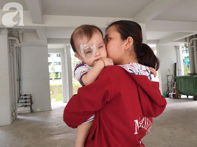 Bé trai 15 tháng tuổi có nguy cơ mù vĩnh viễn, người mẹ trẻ khóc cạn nước mắt đi tìm ánh sáng cho con - Ảnh 10.