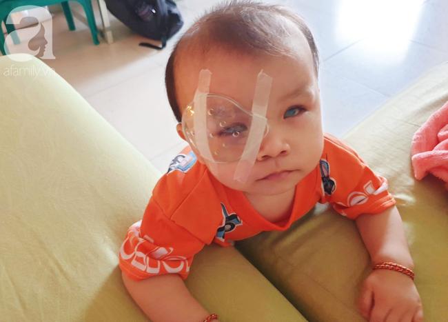 Bé trai 15 tháng tuổi có nguy cơ mù vĩnh viễn, người mẹ trẻ khóc cạn nước mắt đi tìm ánh sáng cho con - Ảnh 16.