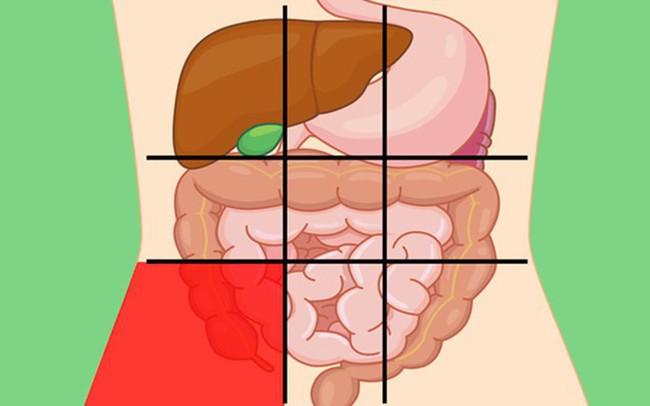 GS tiêu hóa chia sẻ: 7 vị trí đau bụng ai cũng cần biết để nhận diện mối nguy hiểm - Ảnh 3.