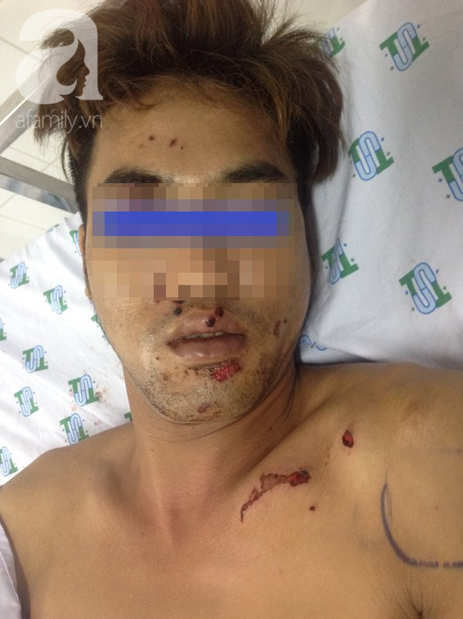 Tai nạn nguy hiểm: Vừa sạc pin vừa nói chuyện điện thoại, thanh niên 29 tuổi suýt nát mặt, mất bàn tay - Ảnh 1.