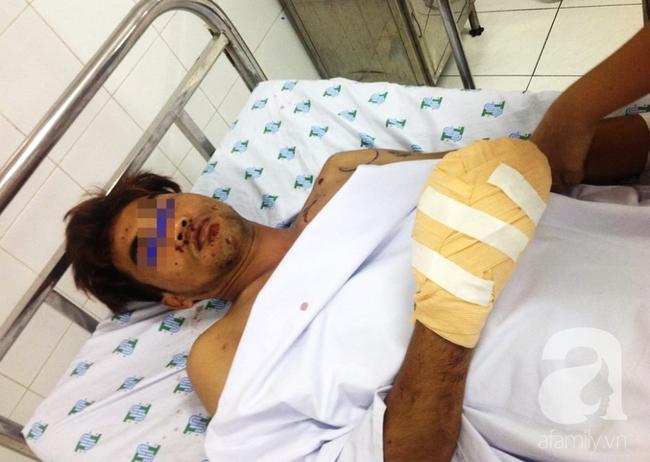 Tai nạn nguy hiểm: Vừa sạc pin vừa nói chuyện điện thoại, thanh niên 29 tuổi suýt nát mặt, mất bàn tay - Ảnh 2.