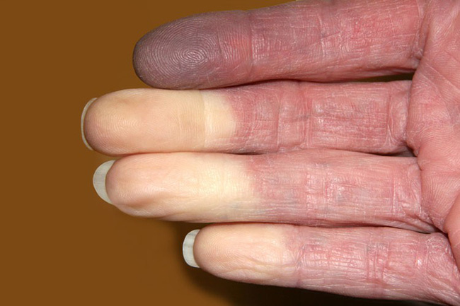 Nguyên nhân dẫn đến bệnh tê tay - Ảnh 2