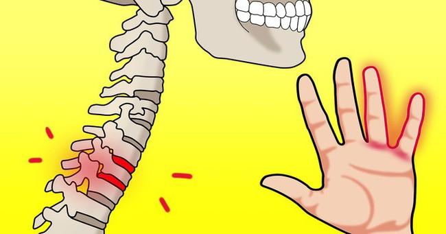 Nguyên nhân dẫn đến bệnh tê tay - Ảnh 4