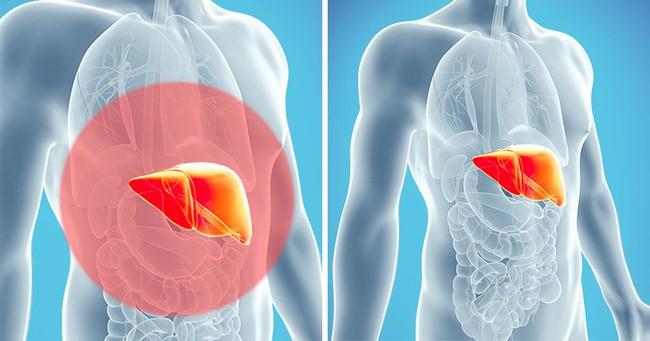 10 dấu hiệu cho thấy cơ thể bạn bị ngập trong chất độc và cần được giải cứu ngay - Ảnh 11.