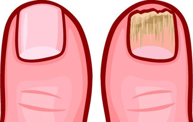 10 dấu hiệu cho thấy cơ thể bạn bị ngập trong chất độc và cần được giải cứu ngay - Ảnh 9.