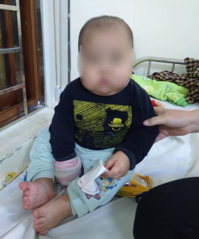 Uống thuốc ho chứa corticoid, bé trai 17 tháng tuổi bị suy thượng thận cấp - Ảnh 1.