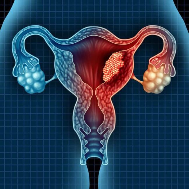 Những căn bệnh ở buồng trứng dễ gây vô sinh, hiếm muộn mà phái nữ cần nắm rõ - Ảnh 2.