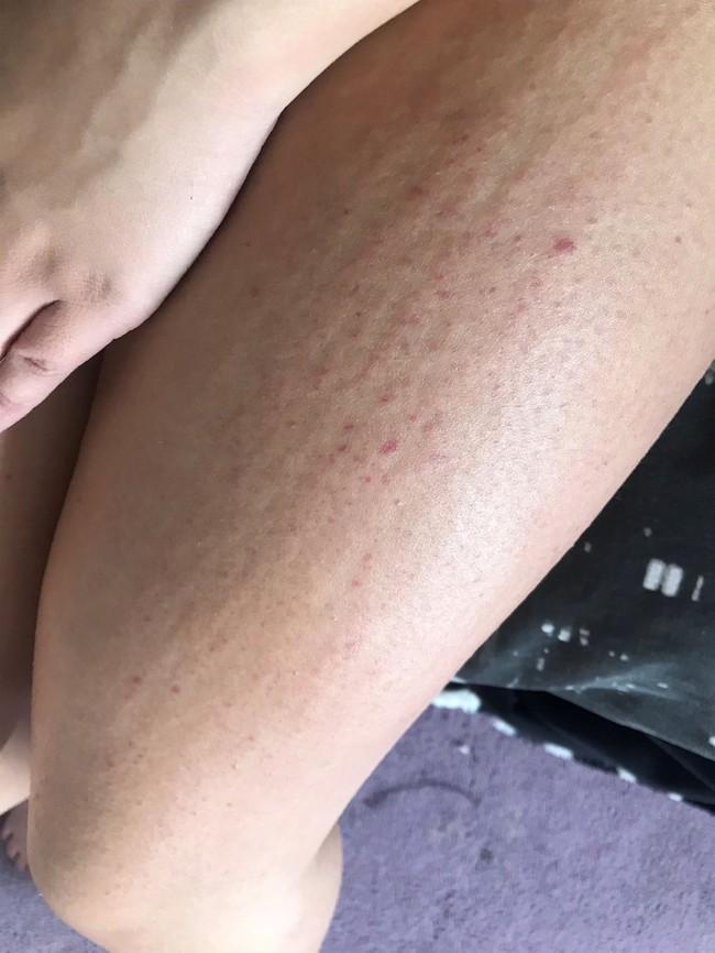 Cô gái 21 tuổi sống khổ sở vì một căn bệnh kỳ lạ hiếm nhưng có thật, chỉ nghe đến thôi đã phải nổi da gà - Ảnh 3.