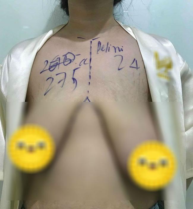 Bức ảnh bộ ngực chảy xệ vì sinh con xuất hiện đúng Ngày của mẹ khiến hội chị em xót xa, vài giờ sau đó có điều gây bất ngờ - Ảnh 1.