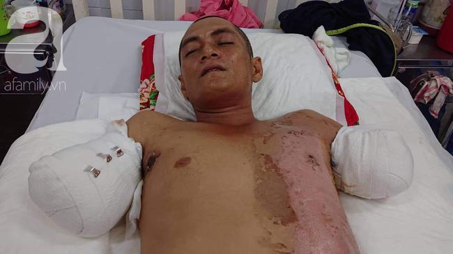 Đi làm nuôi mẹ già bị tai biến, chồng bị điện giật phải cắt 2 tay, vợ và 4 con đau đớn gom góp tiền cứu bố - Ảnh 2.