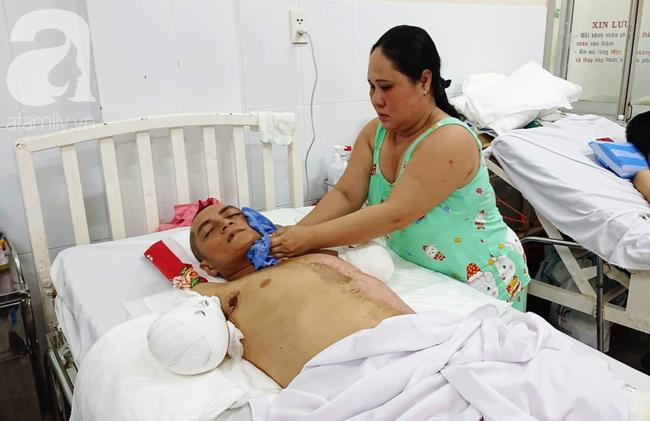 Đi làm nuôi mẹ già bị tai biến, chồng bị điện giật phải cắt 2 tay, vợ và 4 con đau đớn gom góp tiền cứu bố - Ảnh 6.