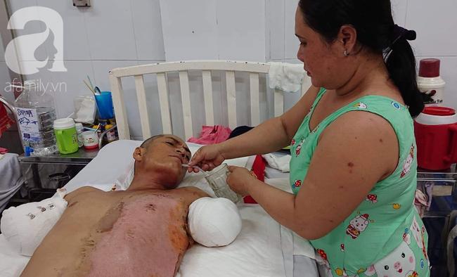 Đi làm nuôi mẹ già bị tai biến, chồng bị điện giật phải cắt 2 tay, vợ và 4 con đau đớn gom góp tiền cứu bố - Ảnh 3.