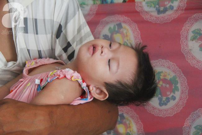 Bé gái 1 tuổi co giật liên tục đến mức méo miệng, bố mẹ nghèo bật khóc khi đã có tiền chữa bệnh cho con - Ảnh 9.