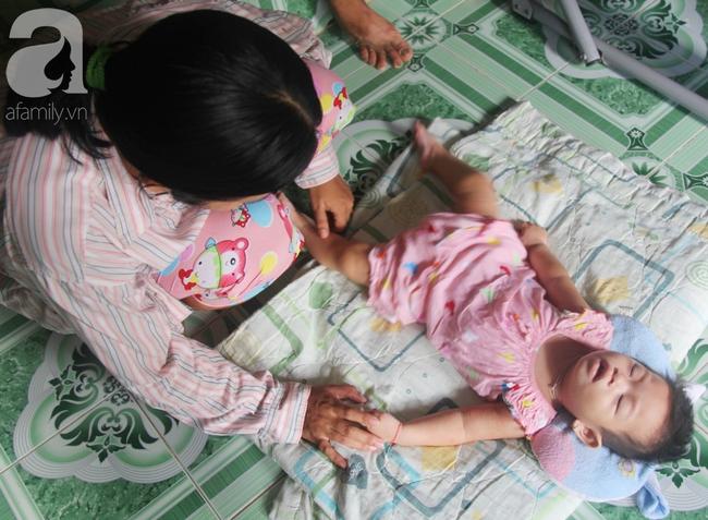 Bé gái 1 tuổi co giật liên tục đến mức méo miệng, bố mẹ nghèo bật khóc khi đã có tiền chữa bệnh cho con - Ảnh 10.