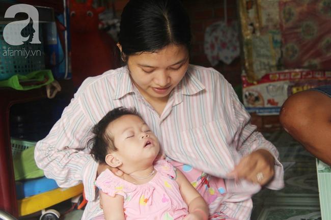 Bé gái 1 tuổi co giật liên tục đến mức méo miệng, bố mẹ nghèo bật khóc khi đã có tiền chữa bệnh cho con - Ảnh 8.