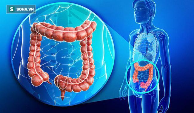 BS khuyến cáo: Uống 1 lon nước ngọt/ngày, ung thư xuất hiện sớm, ác tính hóa nhanh - Ảnh 1.