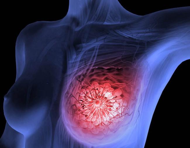 Tưởng đâu chỉ là 1 cơn đau bình thường, hóa ra tôi đã mắc phải ung thư vú giai đoạn 4 - Ảnh 3.