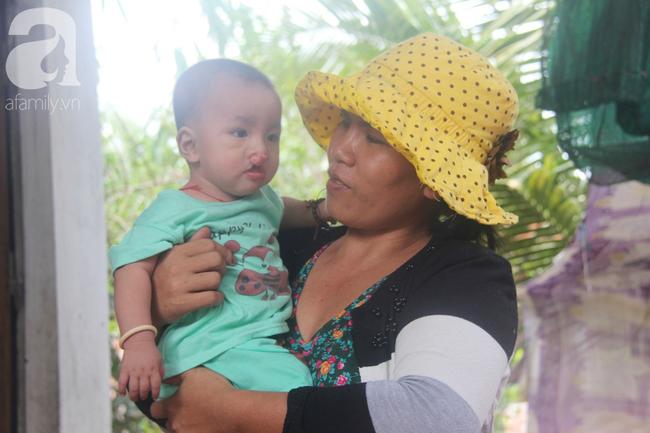 Tròn một năm, bé trai suy dinh dưỡng chỉ nặng 2kg nằm chờ chết vì mẹ nghèo nay đã bụ bẫm, đáng yêu không ngờ - Ảnh 10.