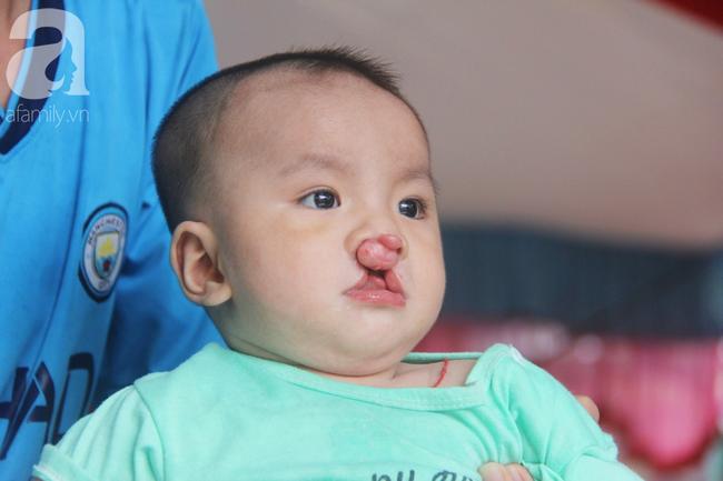 Tròn một năm, bé trai suy dinh dưỡng chỉ nặng 2kg nằm chờ chết vì mẹ nghèo nay đã bụ bẫm, đáng yêu không ngờ - Ảnh 13.