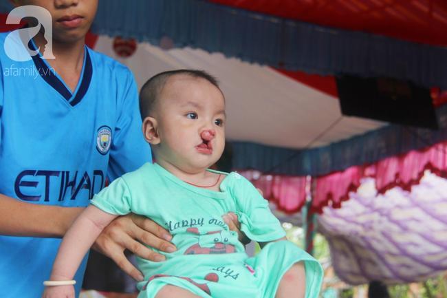 Tròn một năm, bé trai suy dinh dưỡng chỉ nặng 2kg nằm chờ chết vì mẹ nghèo nay đã bụ bẫm, đáng yêu không ngờ - Ảnh 20.