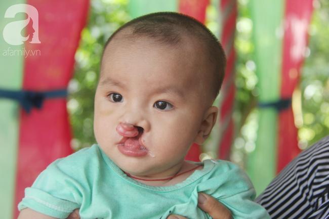 Tròn một năm, bé trai suy dinh dưỡng chỉ nặng 2kg nằm chờ chết vì mẹ nghèo nay đã bụ bẫm, đáng yêu không ngờ - Ảnh 23.