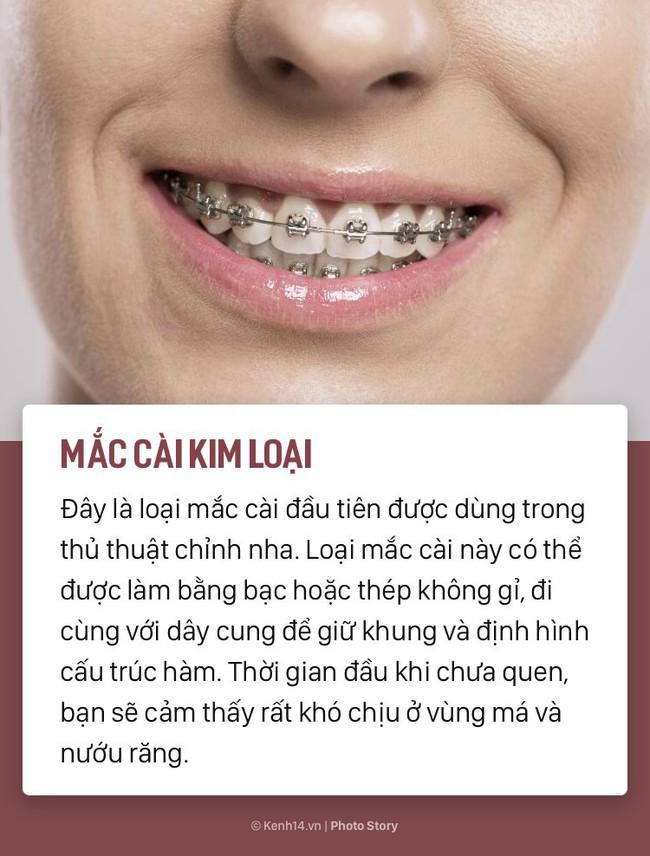 Chỉ là niềng răng thôi mà cũng có rất nhiều phương pháp, loại hình khác nhau để các bạn lựa chọn - Ảnh 1.