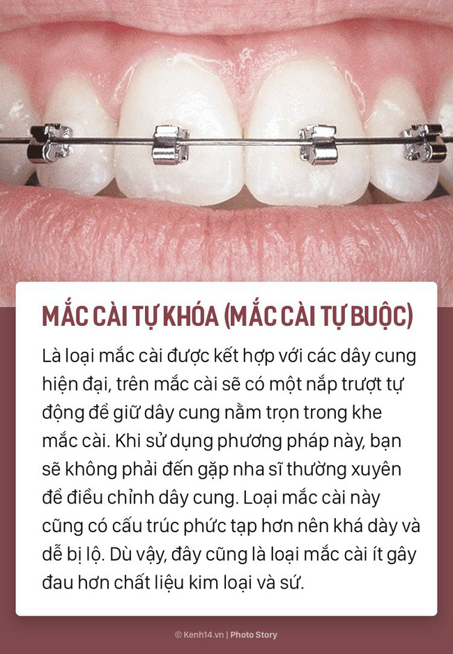 Chỉ là niềng răng thôi mà cũng có rất nhiều phương pháp, loại hình khác nhau để các bạn lựa chọn - Ảnh 5.
