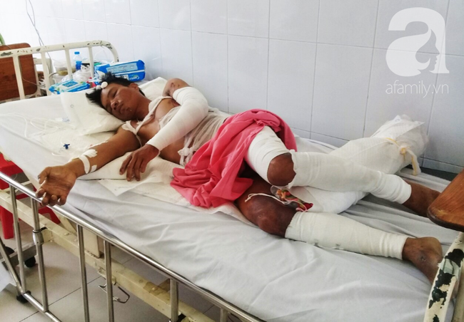 Vừa chịu tang mẹ chồng, người vợ đau đớn khi chồng lại bị điện giật bỏng nặng trong lúc làm thuê nuôi 2 con nhỏ - Ảnh 1.