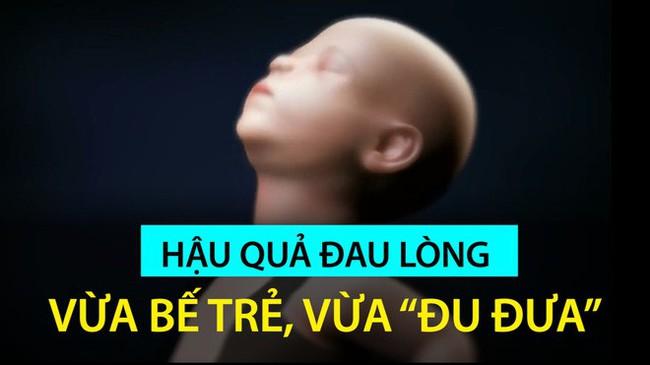 Rung lắc cho trẻ ngủ hoặc nín khóc có thể gây tử vong: Người lớn cần dừng ngay lập tức - Ảnh 3.