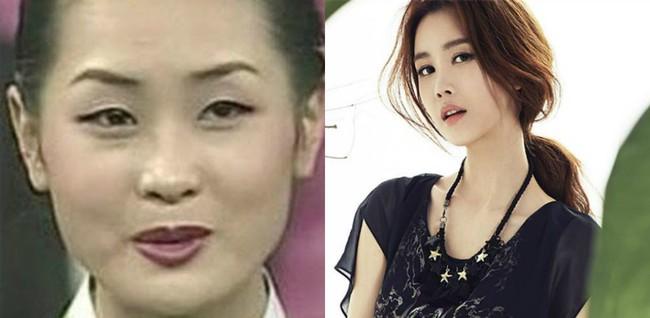 Từng thừa nhận dao kéo, Lee Da Hae bất ngờ lên tiếng trước tin đồn lạm dụng thẩm mỹ đến mức nghiện - Ảnh 1.
