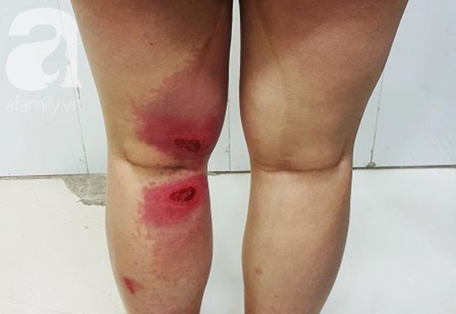 Cô gái 26 tuổi bất ngờ bị sưng mắt, da bỏng rát vì loài côn trùng có độc hoành hành vào mùa hè - Ảnh 2.