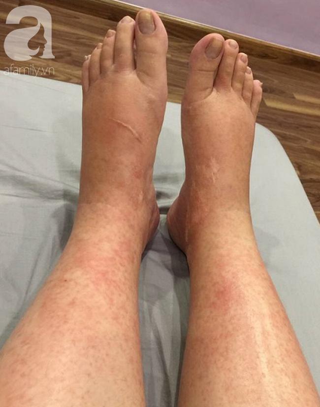Cô gái 26 tuổi bất ngờ bị sưng mắt, da bỏng rát vì loài côn trùng có độc hoành hành vào mùa hè - Ảnh 5.
