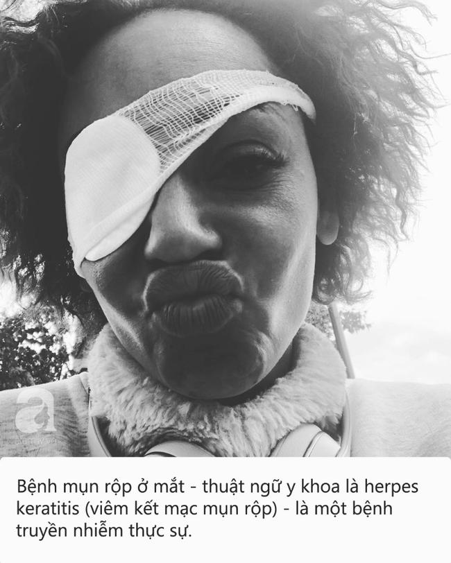 Đây là căn bệnh do virus herpes gây ra khiến cựu thành viên nhóm nhạc Spice Girl suýt mù lòa - Ảnh 1.