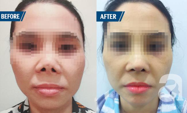 Ham nâng mũi cao Tây bất chấp, nhiều phụ nữ Việt gánh hậu quả nặng nề - Ảnh 5.