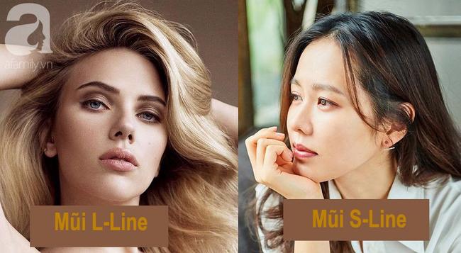 Nâng mũi cao như Tây có gì hay mà khiến nhiều phụ nữ Việt ham mê đến vậy? - Ảnh 4.