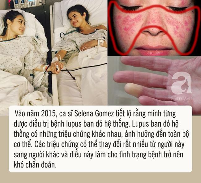 benh-lupus-ban-do-2