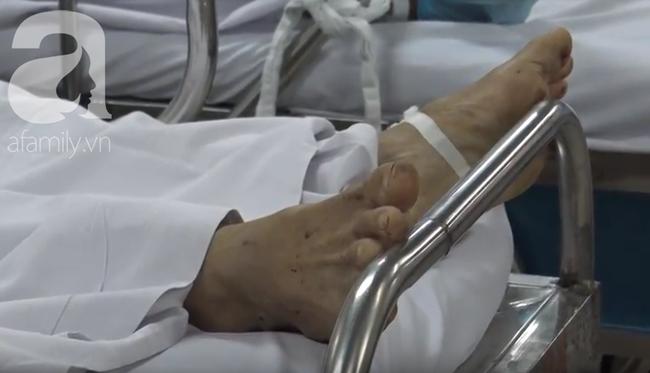 Nạn nhân bị hổ cắn đứt lìa tay ở Bình Dương còn phải phẫu thuật nhiều lần - Ảnh 4.