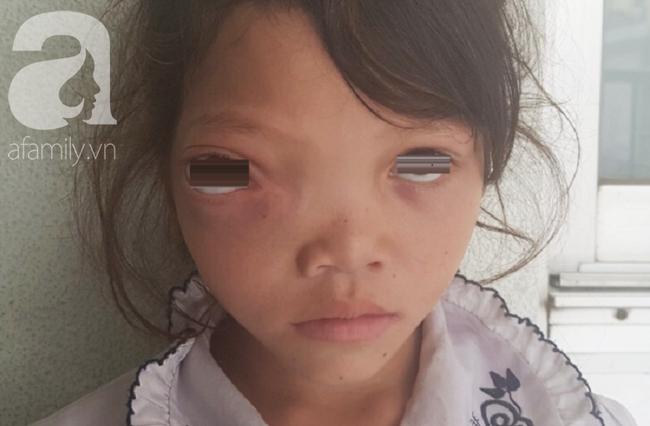 Bé gái 7 năm trời chịu đựng khối u hiểm ác xâm lấn lên não, cướp mất ánh sáng - Ảnh 2.