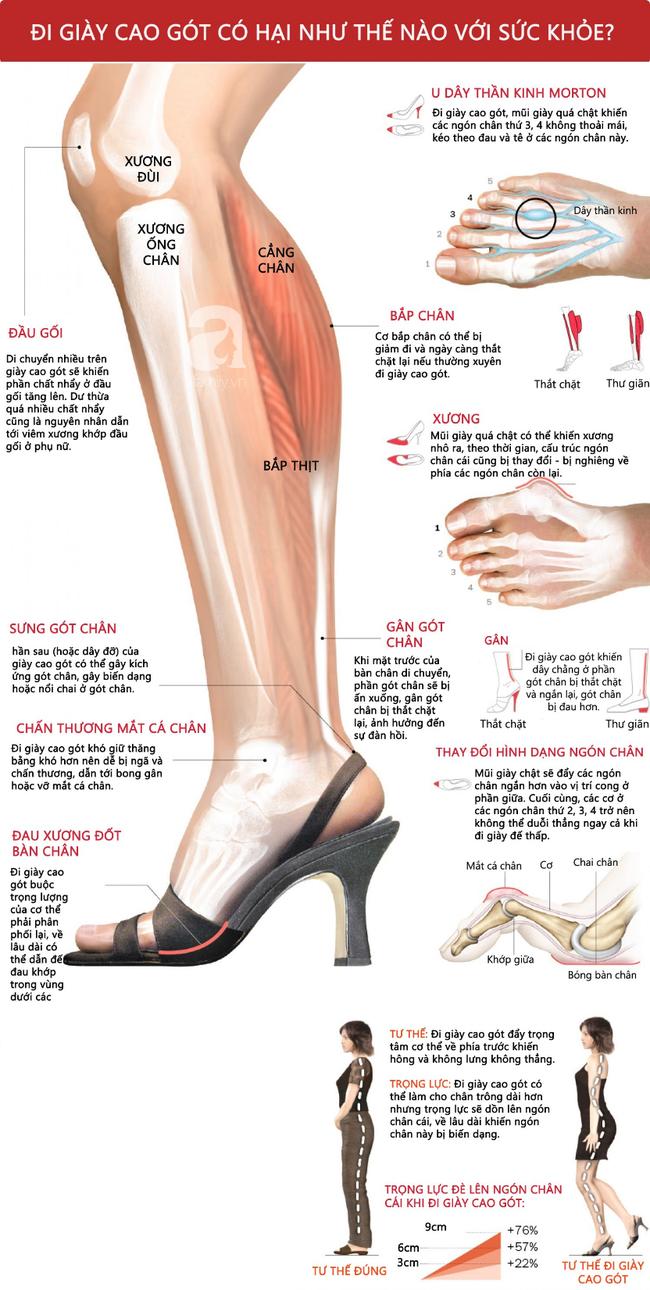 Phong trào #KuToo: Đi giày cao gót có hại đến thế nào mà khiến chị em công sở có hẳn một phong trào phản đối thế này? - Ảnh 2.