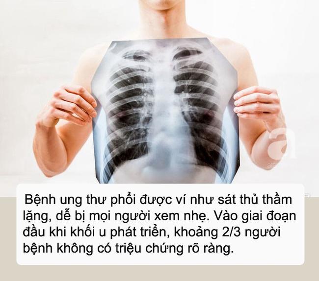 ung-thu-phoi
