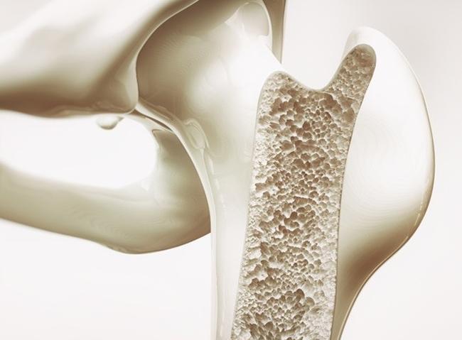 """Nghiên cứu cho rằng: """"Đâm đầu"""" cắt giảm calo và luyện tập cuồng nhiệt có thể khiến xương bạn dễ gãy hơn - Ảnh 2."""