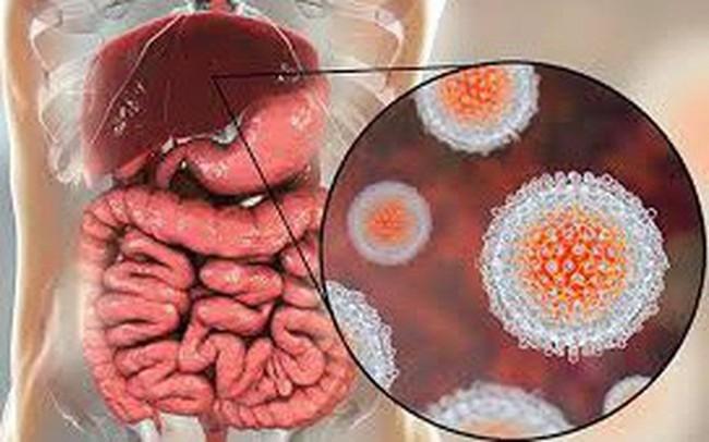 Những căn bệnh lây truyền qua đường ăn uống thường gặp được bác sĩ cảnh báo - Ảnh 3.