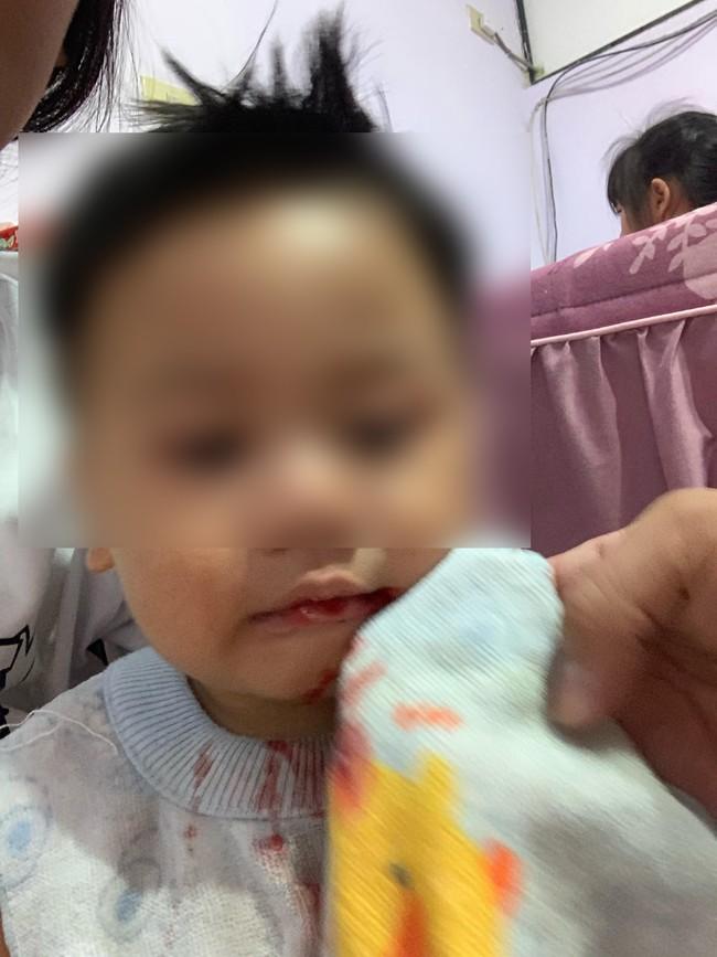 Bé trai chảy máu miệng - Ảnh 2.