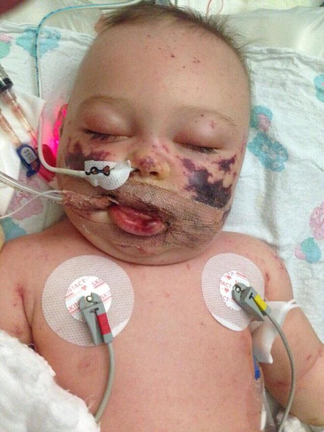 Viêm màng não đã khiến bé trai này chịu thương tổn thế nào, các cha mẹ cần biết - Ảnh 2.