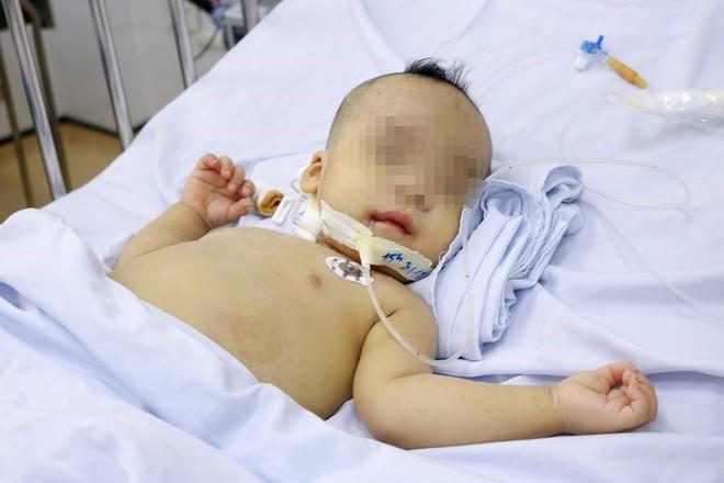 TP.HCM: Bé trai 1 tuổi sốc nhiễm trùng nặng, tiên lượng tử vong 99% được cứu sống - ảnh 1